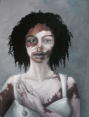 Custom Made Renewal-Acrylic On Canvas Portrait Of A Woman With Vitiligo